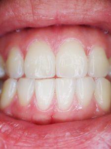 שיניים קדמיות